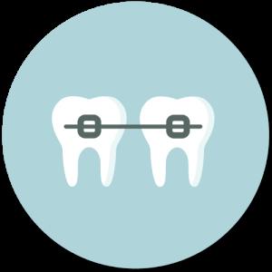 Feste Spange zur Korrektur von Zahnfehlstellungen
