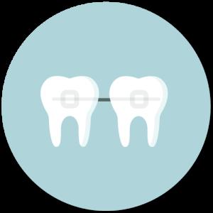 Lingultechnik zur Korrektur von Zahnfehlstellungen