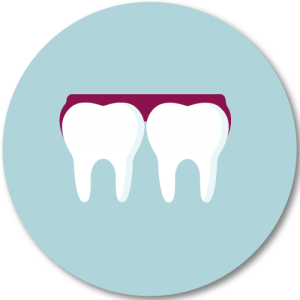 Schnarch und Knirschschienen schonen Kiefer und Zähne